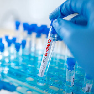 Medical scientist hand with blue sterile rubber gloves holding COVID-19 test tube in hospital laboratory. Male doctor or physician getting result of Coronavirus case. 2019-nCoV lab test concept